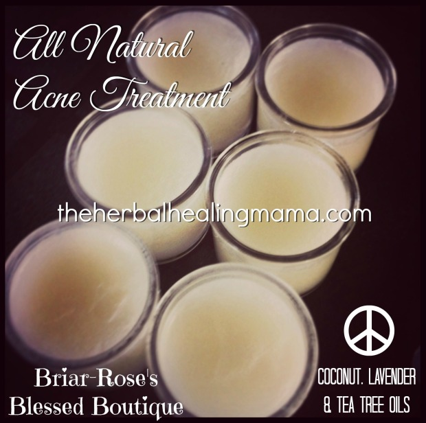 All natural Acne cream DIY