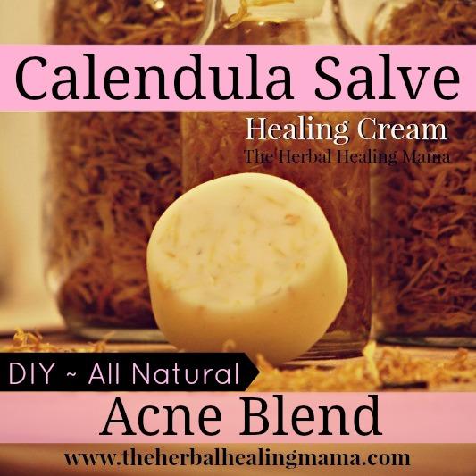 Calendula Healing Salve Acne Blend